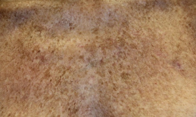 brown-spots-before-IPL