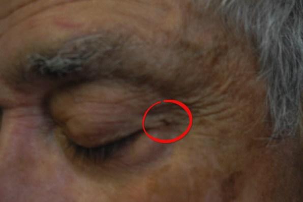 skin-tag-removal