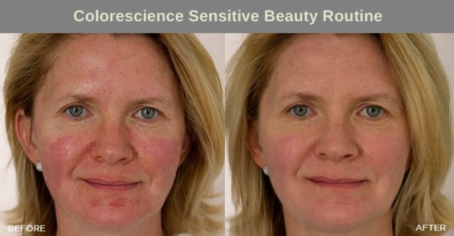 colorescience-before-after-sensitive-beauty-routine