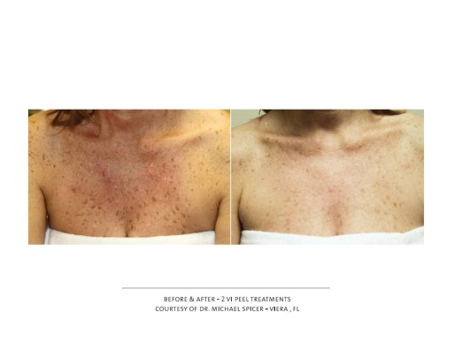 vi-peel-on-chest-before-after