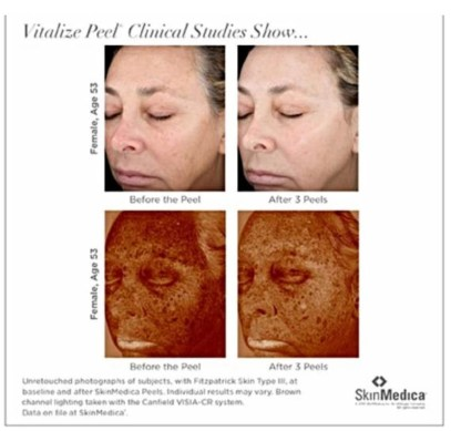 vitalize peel photo