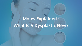 Moles Explained : What Is A Dysplastic Nevi?