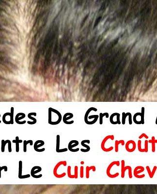 Bouton Cuir Chevelu Remede Grand Mere : bouton, chevelu, remede, grand, Index, /wp-content/uploads/2018/05