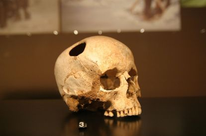 trepanation-ancient-highly-risky-head-trauma-treatment-involving-drilling-scraping-hole