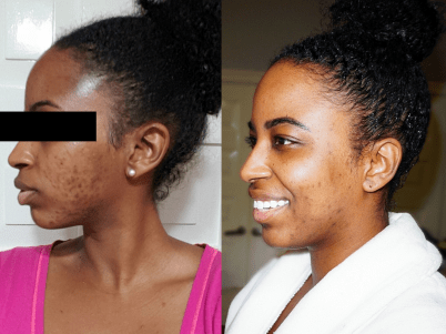 Skin Care Before & After