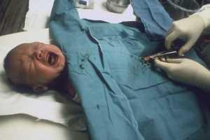 Beschneidung eines Babys