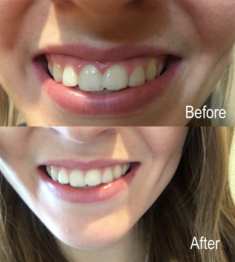 SmileBrilliant_BeforeAfter