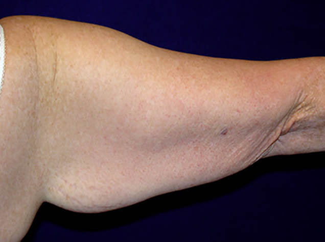 Image of arm courtesy of http://www.paulpinmd.com/arm-lift-gallery/