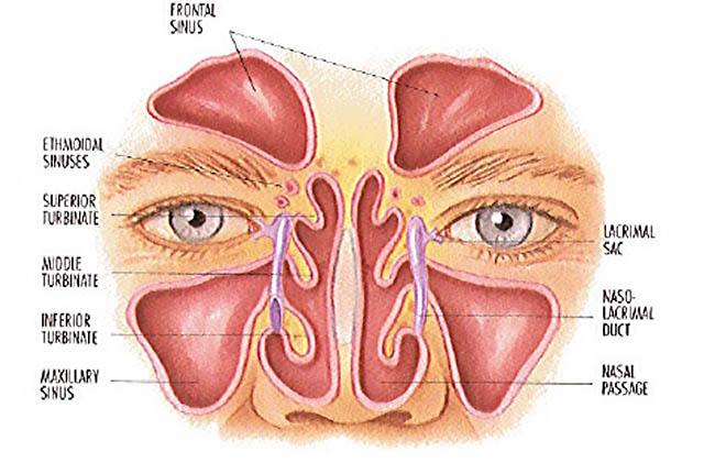 image of a diagram of the sinuses