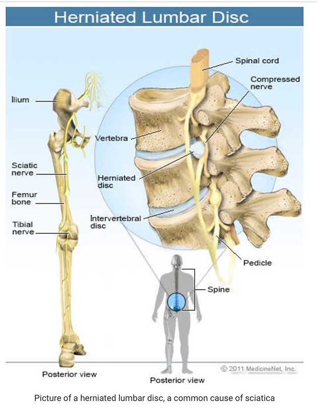 Image of illustration of a herniated lumbar disc