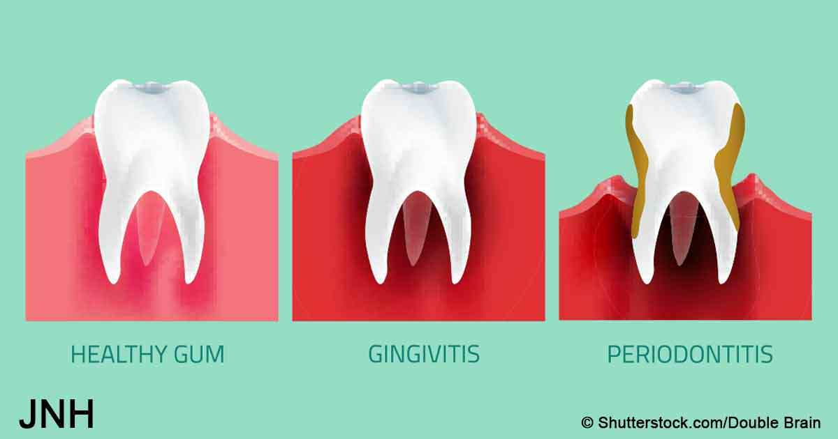 5 natural ways to reverse gum disease without going to the dentist