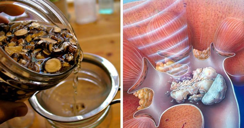 5 Home Remedies To Prevent Kidney Stones