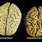 Follow This Advice To Prevent Alzheimer's Naturally