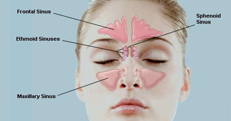 Get Rid Of Sinusitis Easily With These Powerful Remedies