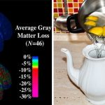 Prevent Diabetes and Alzheimer's with Vitamin C Megadoses