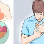 What Causes Acid Reflux? Plus How to Prevent it!