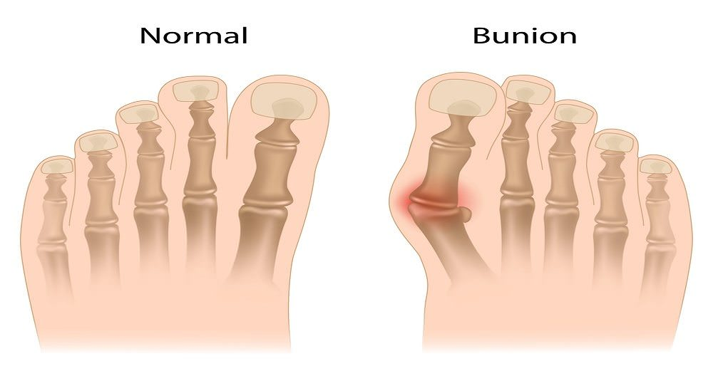 Bunions: Causes, Symptoms and Treatment