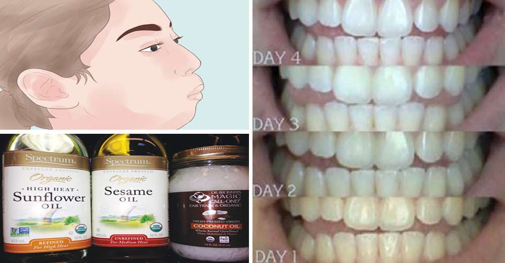 How Oil Pulling Can Whiten Your Teeth, Improve Your Gums and Transform Your Dental Health!