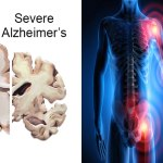 The New Root Cause of Alzheimer's and It's Preventable!