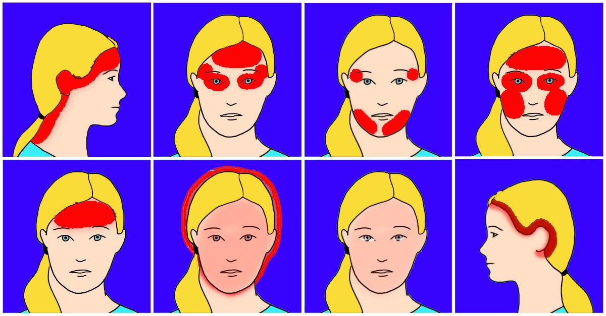 Ten common headaches