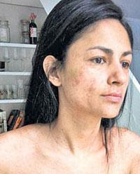 Aruna Shield Nude Miss Measles