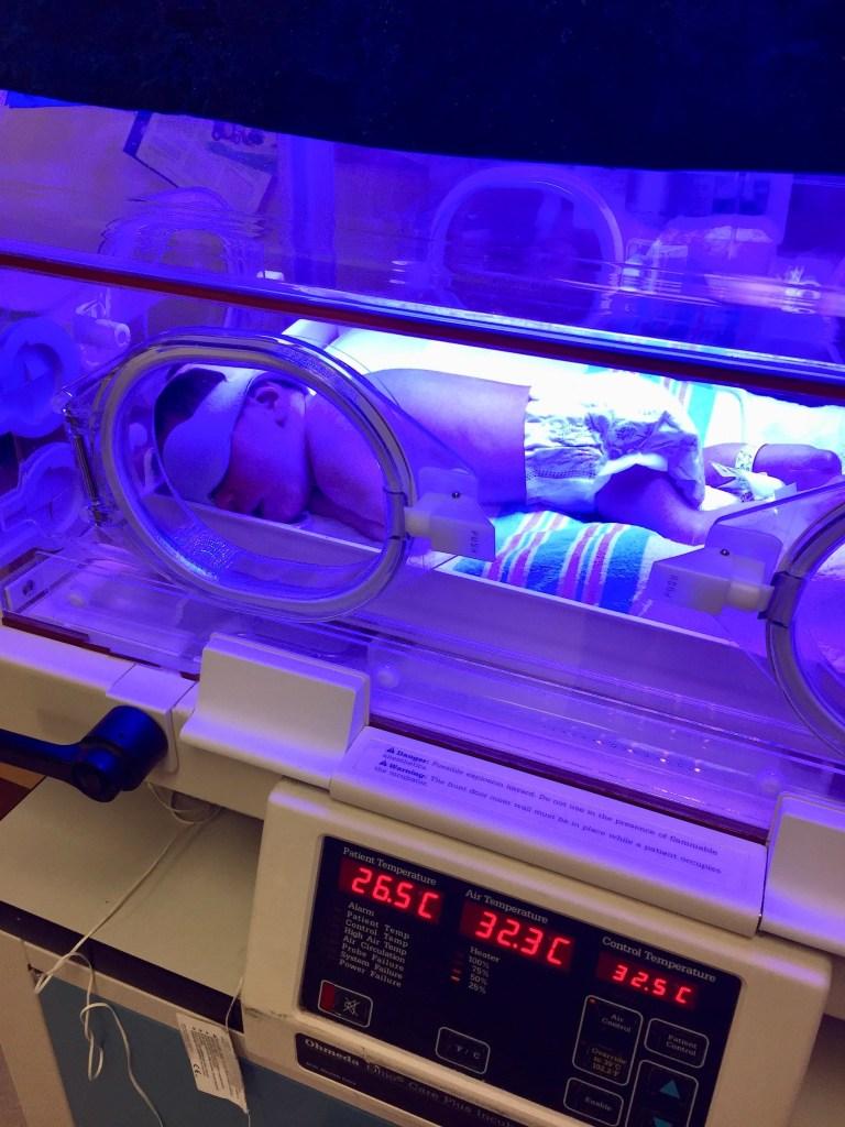 newborn jaundice phototherapy