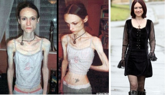 15 inspiring before and
