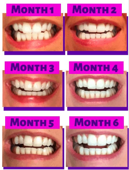 How Should Aligners Fit : should, aligners, Smile, Direct, Experience,, Before, After, Results, Review