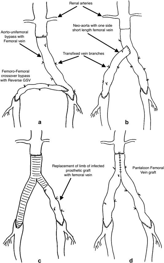 "Pantaloon femoral vein graft as ""neoaorta"" in infected"