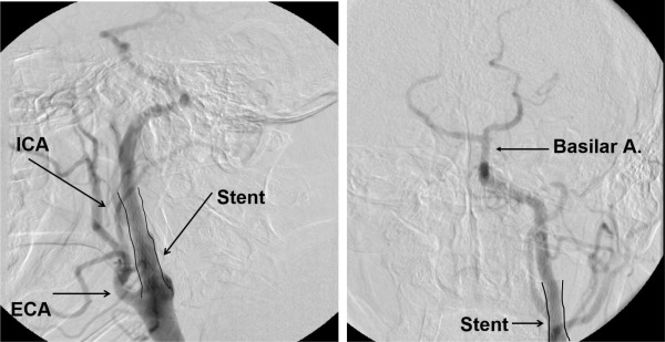 Revascularization for failed carotid artery stenting in a
