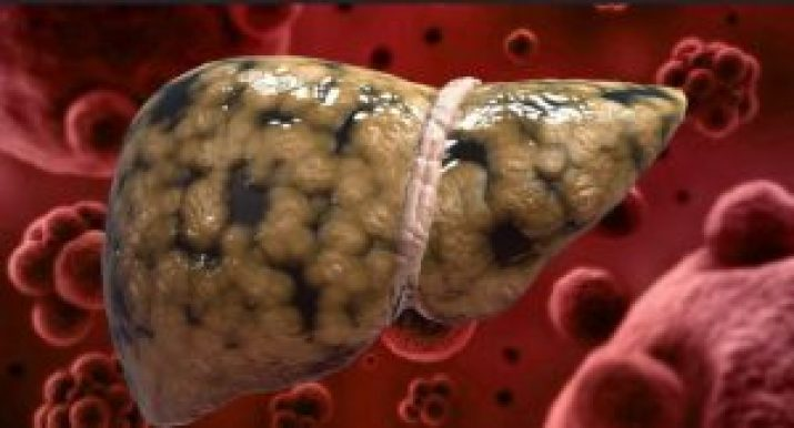 كيف تتخلص من سموم الكبد