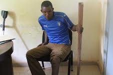 Boké: S.O.S pour sauver la vie d'un handicapé dont le pied se métamorphose