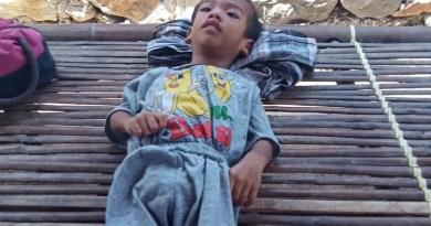 Butuh Bantuan, Balita Umur Tiga Tahun Hanya Terbaring Lemah dan Lumpuh