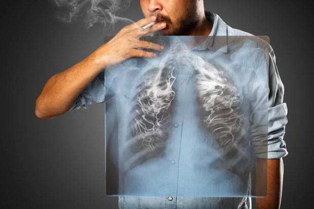 dampak merokok pada sakit PPOK