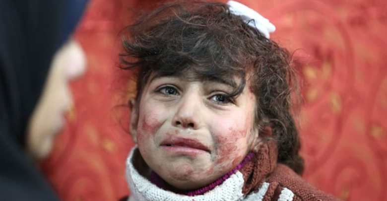 A young girl receives treatment at a makeshift hospital following regime bombardments in Eastern Ghouta region [Amer Almohibany/AFP]