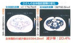 ボディセラプロで皮下脂肪はもちろん内臓脂肪も減少。メタボ改善に。