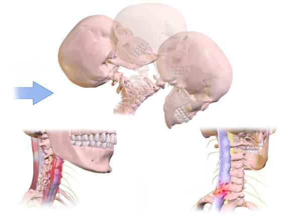 交通事故での頚椎捻挫とは?【基本的な部分と当院での見解を説明します】