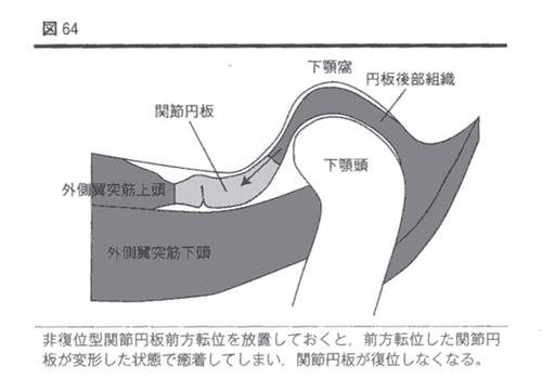 顎関節症の患者さんの1症例【固い物を噛むときに痛む】