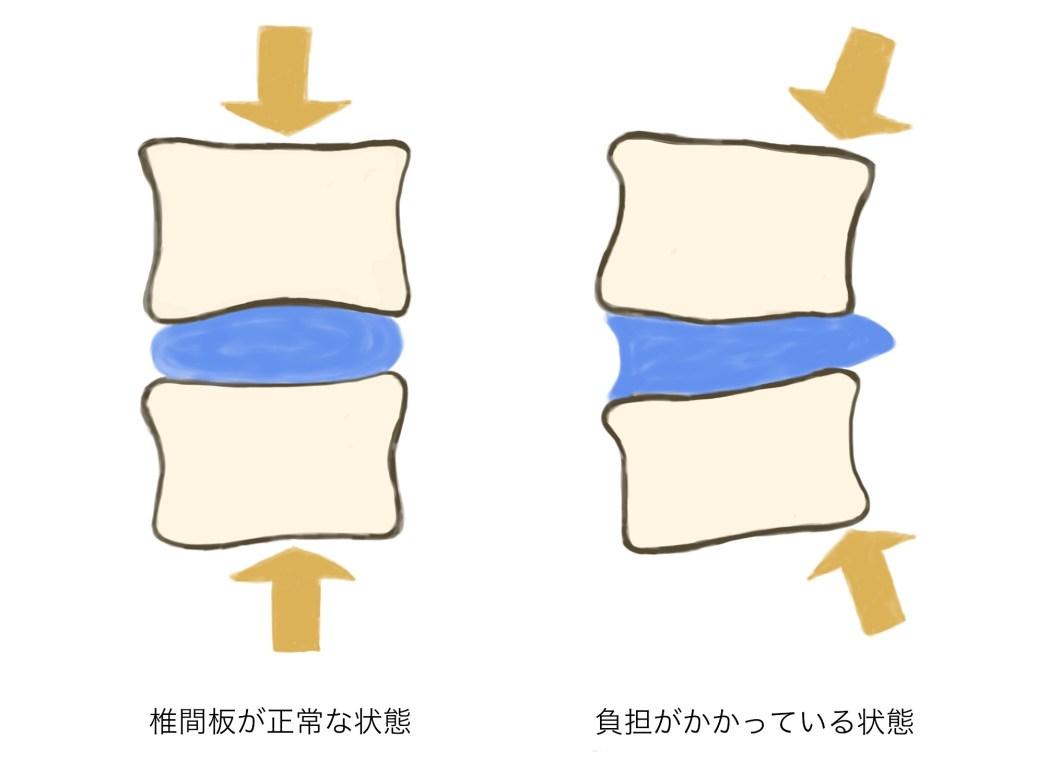 椎間板とマットレス