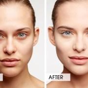 eye dark circles remove
