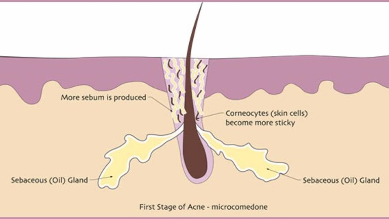 hight resolution of what is acne and why do you need to know
