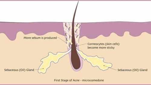 small resolution of what is acne and why do you need to know