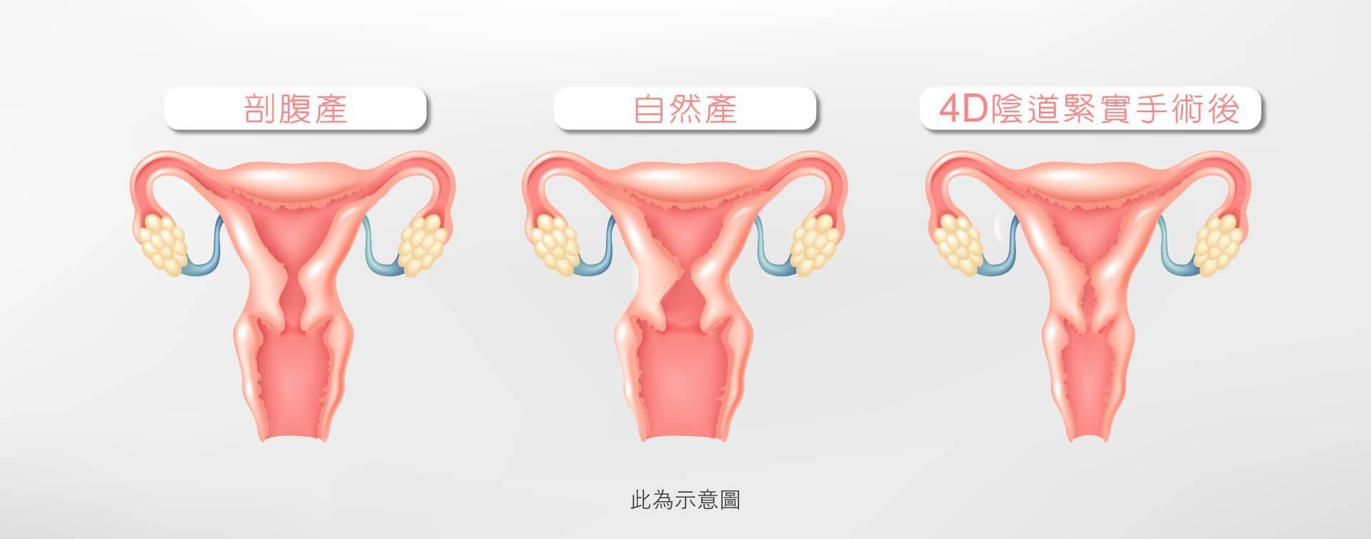 4D陰道緊實手術
