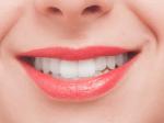 歯のタバコヤニを除去する方法