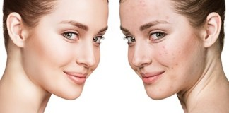 Solutions For Acne :