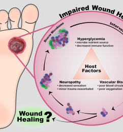 cutaneous wound infection is a challenge that has been exacerbated by antibiotic resistance older adults and chronic disease populations such as those  [ 1068 x 775 Pixel ]