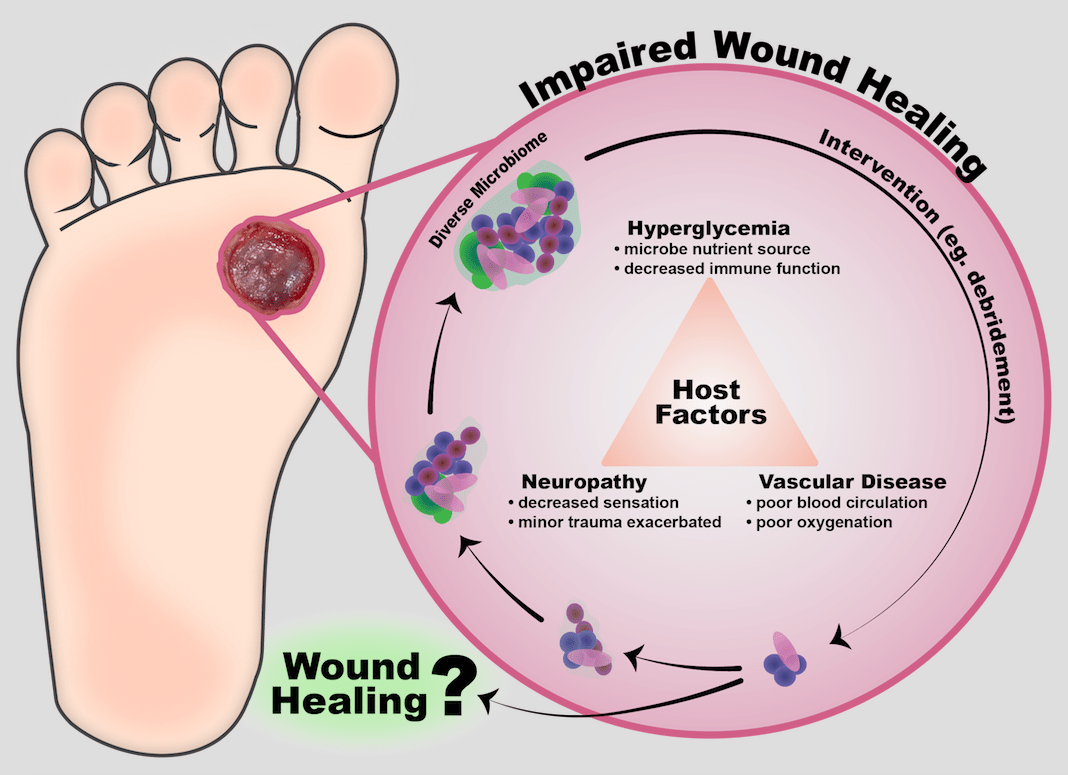 hight resolution of cutaneous wound infection is a challenge that has been exacerbated by antibiotic resistance older adults and chronic disease populations such as those