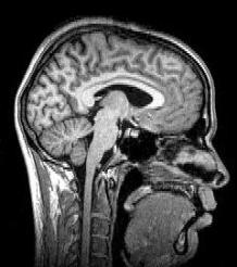 Sagittal brain MRI. Republished under CC from Wikimedia.
