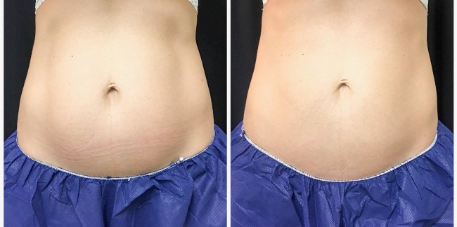 CoolSculpting Final Results