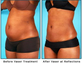 liposuction-physician-columbus-ohio